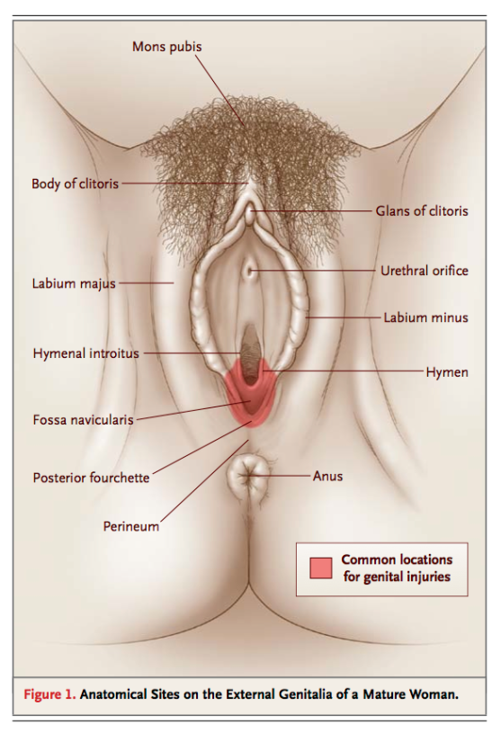 This, likewise is a drawing of an adult woman's vulva showing the names for all the parts and which ones usually get injured in sexual assault. Now you know what all your lady bits are are called.